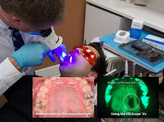 tissue-fluorescence-visualization-2